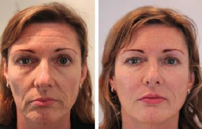 Remove skin Wrinkles lines and creases
