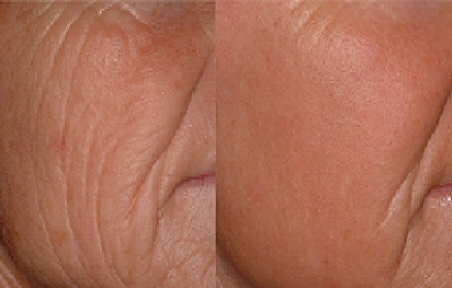 Laser Treatment for Wrinkles Before After